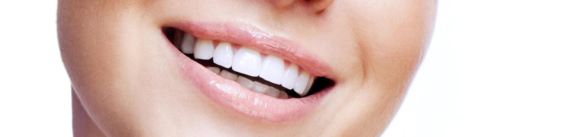 Teeth Whitening Sunderland